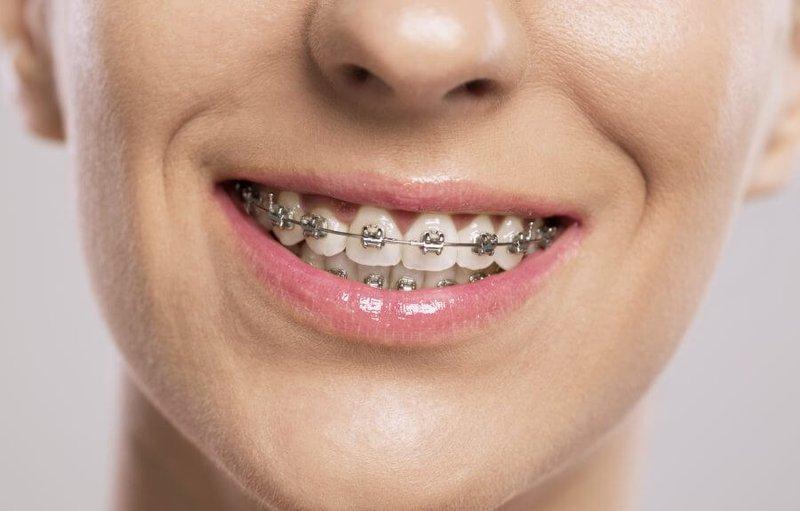 Niềng răng hô bằng mắc cài kim loại 1
