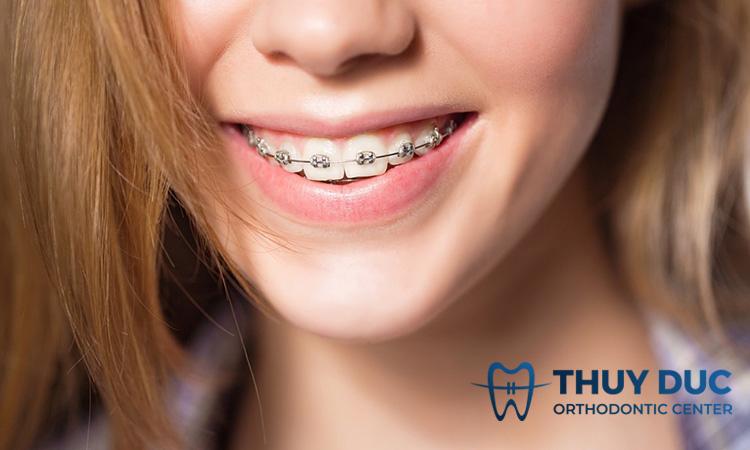 Cắm vít khi niềng răng có đau không? 1